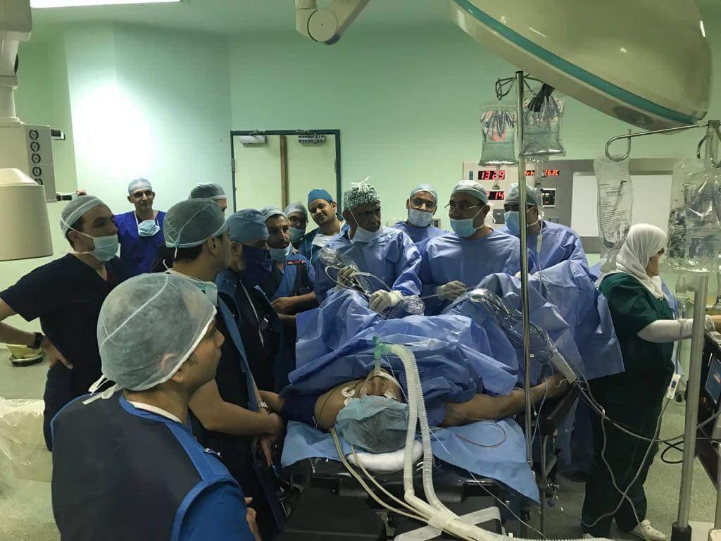 ورشة عمل في مستشفى البشير باستخدام منظار الكلية المرن وتفتيت الحصى بالليزر في حويصلات الكلية