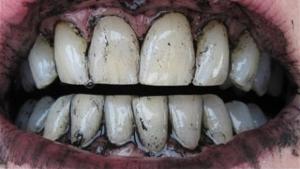 احذر ..  الفحم خطر جدًا على الأسنان لهذه الأسباب