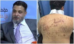 الأمن الوقائي : التحقيقات تكشف حقيقة ادعاء الدكتور يوسف قنديل بتعرضه للاختطاف والاعتداء عليه