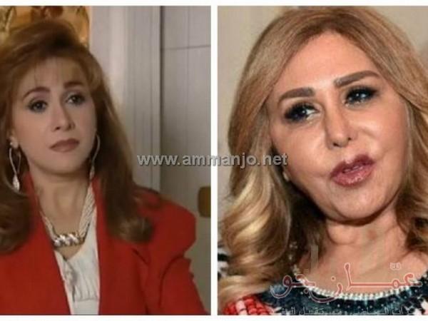 مها المصري بشكل جديد بعد معاناتها مع عمليات التجميل