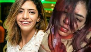 الاعتداء على مغنية راب مغربية حسناء ..  والأخيرة تبكي ووجهها ينزف دماً